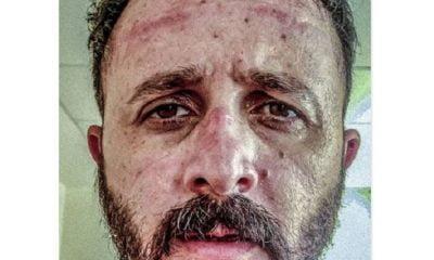 Γροθιά στο στομάχι: Η ανάρτηση του γιατρού για τις μάσκες που έγινε viral (Pic)