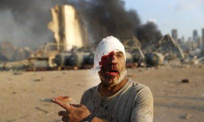 Εκρήξεις στη Βηρυτό: Λουτρό αίματος με 78 νεκρούς και 4.000 τραυματίες - Ζημιές στη μισή πόλη - ΒΙΝΤΕΟ