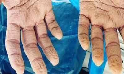 Τα χέρια νοσηλευτή του ΕΟΔΥ μετά από 8 συνεχόμενες ώρες διενέργειας τεστ