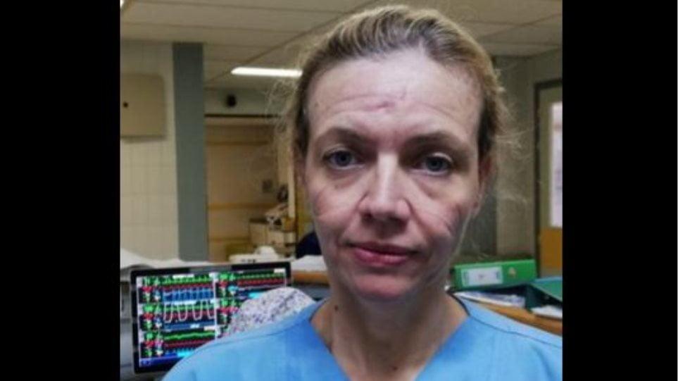 Κορωνοϊός: Συγκινητικό μήνυμα της γιατρού Ελένης Ισχάκη με τα σημάδια της μάσκας στο πρόσωπο: «Βάλ' την λίγες ώρες, γίνε ο ήρωάς μας»